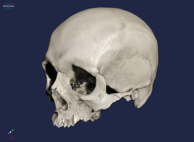 micro-ct-human-skull